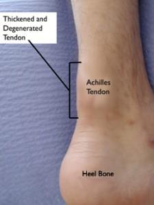 tendinopatía Aquiles
