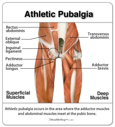 músculos y tendones en el área de la ingle